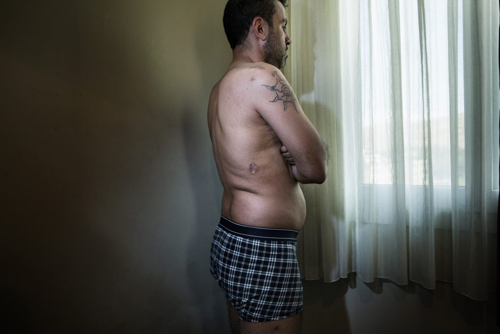 Europa, Turchia, Hatay. Abu Hassan, 40 anni, combattente ribelle del fronte di Jabhat Al Asala, mostra le ferite di guerra nella sua stanza all'hotel Alice a Reyhanli nella provincia Hatay. Foto di Marco Gualazzini