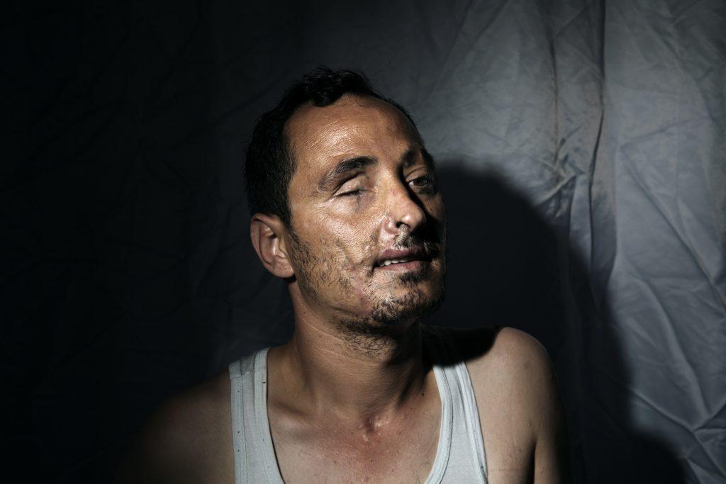 Europa, Turchia, Hatay, Abu Bakr Al Tartusi, 34 anni, ha perso una gamba, un occhio ed è rimasto sfigurato saltando su una mina mentre il suo compagno è morto. Vive in una casa sicura a Reyhanli nella provincia di Hatay con altri ribelli feriti. Foto di Marco Gualazzini