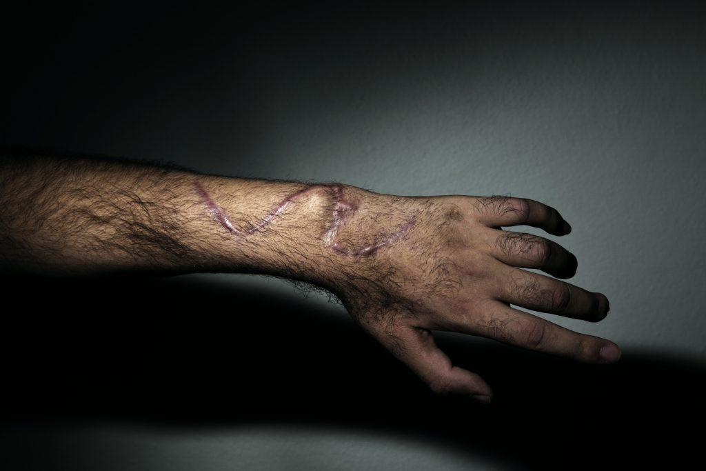 Europa, Turchia, Hatay, Abu Ali, 31 anni di Homs, gli è esplosa un'autobomba che gli ha spaccato tutte le ossa, mentre difendeva la città. Vive in una casa sicura a Reyhanli nella provincia Hatay con altri ribelli feriti. Foto di Marco Gualazzini