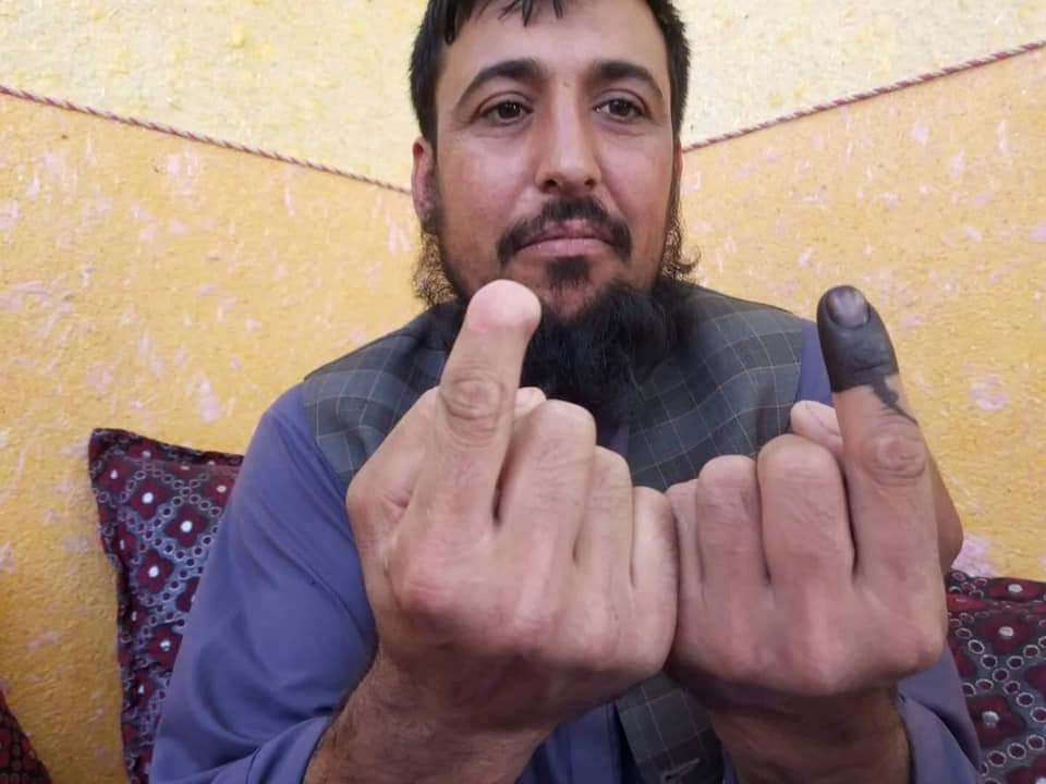 Safiullah Safi, a cui i talebani hanno mozzato il dito solo perché era andato a votare