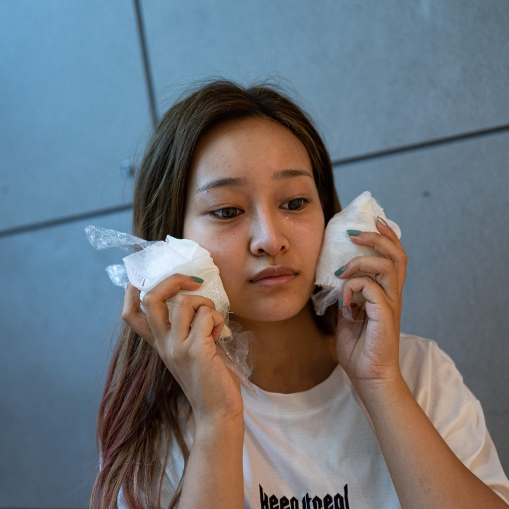 A young girl nearly crying for the beauty treatments she received at an exclusive cosmetic surgery clinic in Wuxi